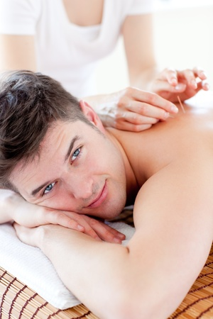 Happy young man in an acupuncture therapy Stock Photo - 10134230