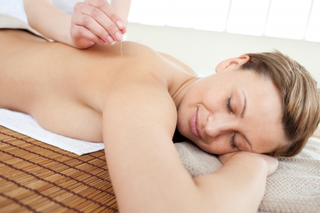 Portrait of a beautiful woman in acupuncture therapy Stock Photo - 10113072