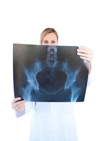 Assertive female doctor hold ing a x-ray Stock Photo - 10240631