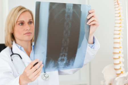 Sad looking doctor looking at x-ray  in her office photo