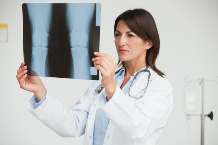 Doctor analysing x-ray in hospital photo