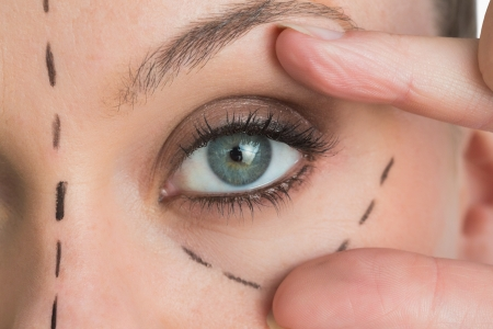 eye surgery: Woman opening the green eye with her hand in the white background