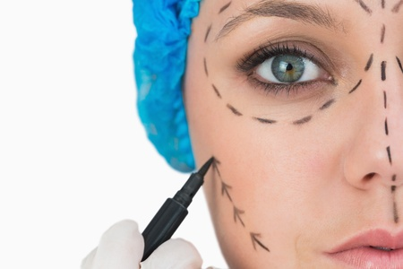 fair woman: Plastic surgeon marking face on white background