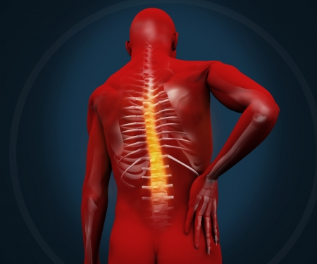orthopedics: Red digital figure having pain in the back