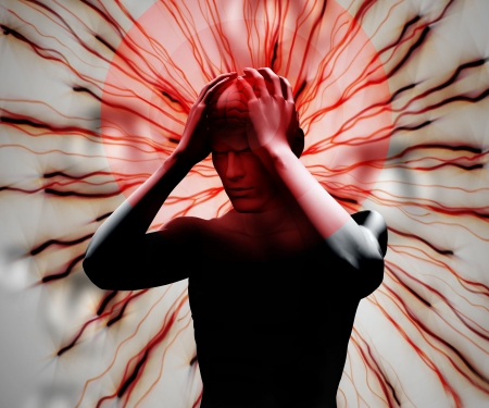 migraine: Digital body with highlighted headache Stock Photo