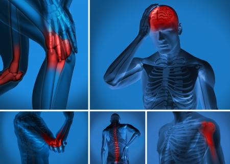 ağrı: Çeşitli vücut ağrısı adam figürü üzerinde vurgulanan Stok Fotoğraf