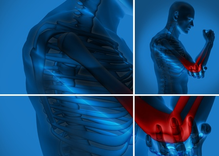 Elbow pain highlighted on blue human figure