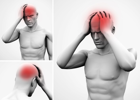 headaches: Head pain highlighted on white figure Stock Photo