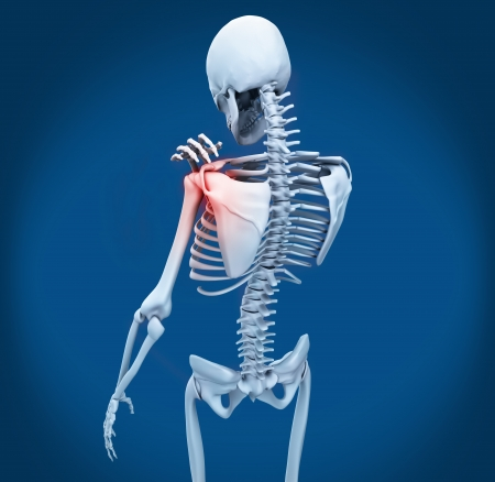 Shoulder pain on skeleton on blue background photo