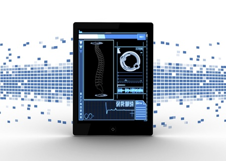 displaying: Tablet displaying medical spine interface on blue mosaic background