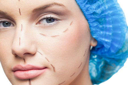 marked: Close up on pretty young patient with dotted lines on the face before surgery Stock Photo
