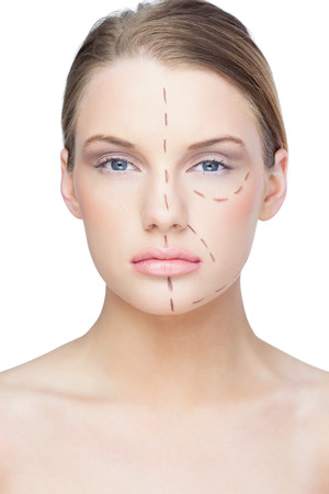 marked: Calm pretty blonde with dotted lines on the face before surgery