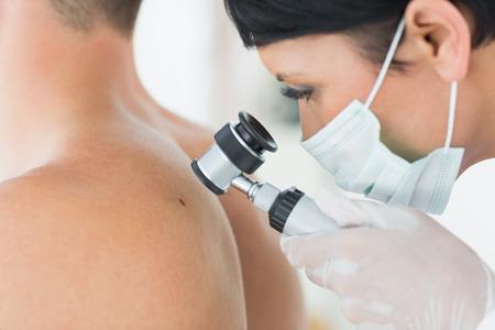 dermatologo: Primo piano del dermatologo esaminare neo sul retro del paziente maschio in clinica