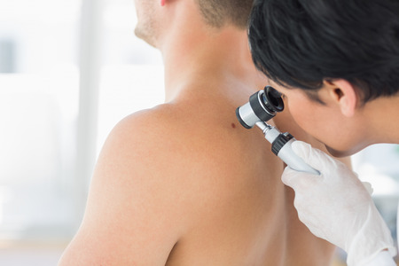 dermatologist: Female doctor examining mole on back of man in clinic