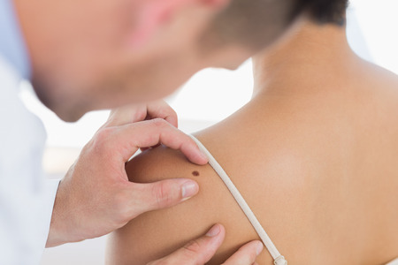 Male doctor examining mole on back of woman in clinic photo