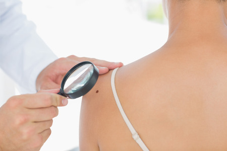 Doctor examining melanoma on woman with magnifying glass in clinic photo