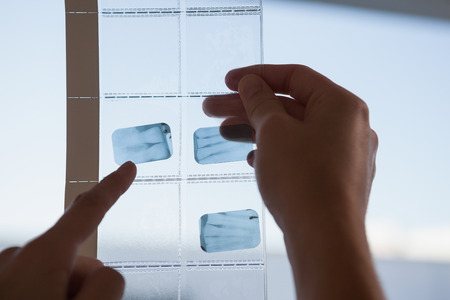 Dentists looking and pointing to xray at the dental clinic photo