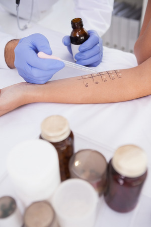 prick: Doctor carrying out a skin prick test on a patient Stock Photo