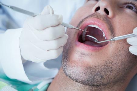 examined: Close up of man having his teeth examined by dentist Stock Photo
