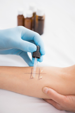 prick: Doctor doing skin prick test at his patient in medical office