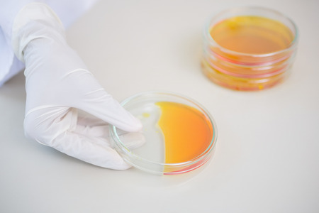petri dish: Scientist holding petri dish with orange fluid inside in laboratory