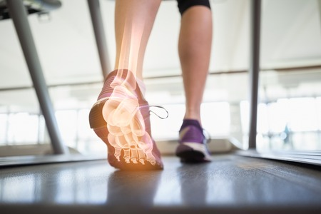 Digital composite of Highlighted foot bones of jogging woman Stock Photo - 44790049