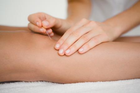 de rodillas: Cierre de vista de la mujer que sostiene una aguja en una terapia de acupuntura