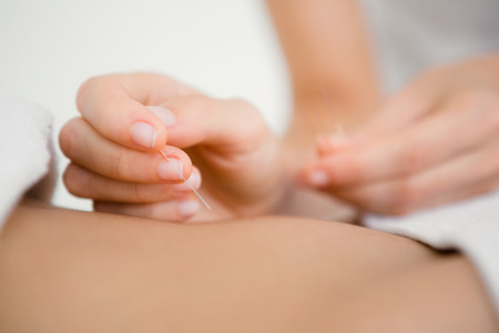 acupuncture needles: Close up view of woman holding a needle in an acupuncture therapy