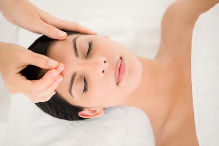 Mujer en una terapia de acupuntura en el balneario de la salud