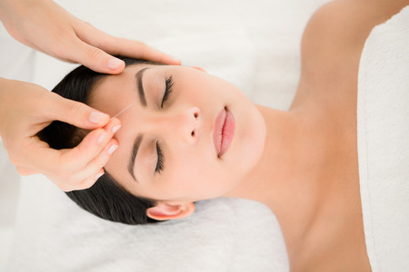 facial: Woman in an acupuncture therapy at the health spa Stock Photo