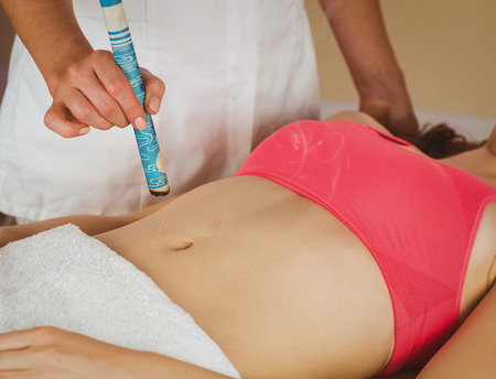 acupuncture: Young woman getting acupuncture treatment in therapy room