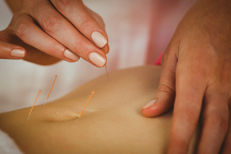 therapy room: Young woman getting acupuncture treatment in therapy room