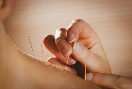 peaceful: Young woman getting acupuncture treatment in therapy room