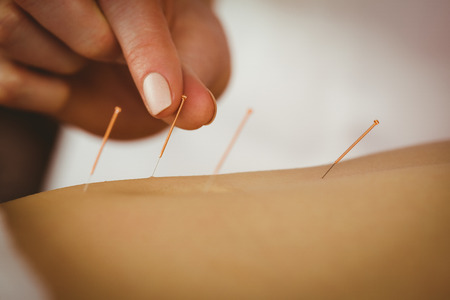 acupuncture needles: Young woman getting acupuncture treatment in therapy room
