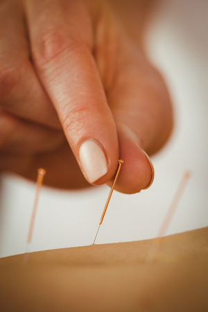 lying on stomach: Young woman getting acupuncture treatment in therapy room