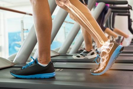 treadmill: Digital composite of Highlighted bones of man on treadmill Stock Photo