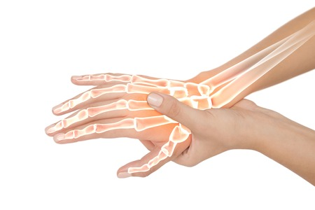digital composite: Digital composite of Highlighted bones of woman with hand pain