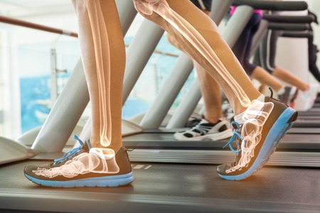 working man: Digital composite of Highlighted bones of man on treadmill Stock Photo