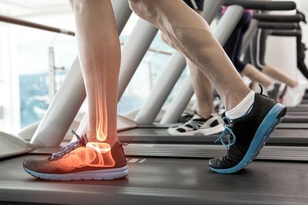 santé: Composite numérique des os en surbrillance de l'homme sur tapis roulant Banque d'images
