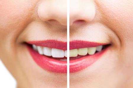 white smile: Extreme close up on beautiful white smile wearing pink lipstick Archivio Fotografico