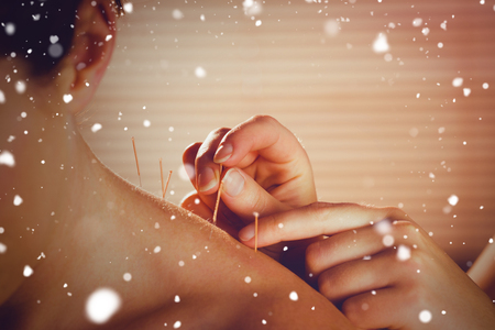 acupuncture needles: Snow against young woman getting acupuncture treatment