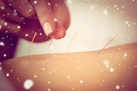 acupuncture: Snow against young woman getting acupuncture treatment