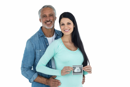 ultrasound scan: Portrait of couple with ultrasound scan on white background