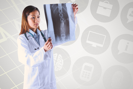 mri scan: Asian doctor checking MRI scan against grey background