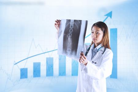 mri scan: Asian doctor checking MRI scan against blue data Stock Photo