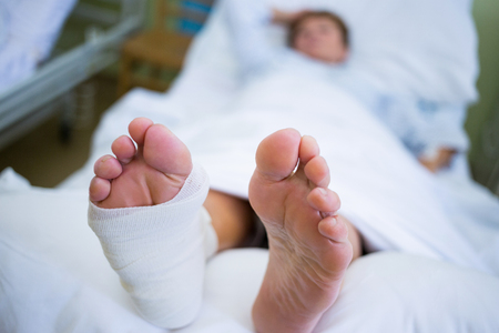 plaster cast: Patient with broken leg in a plaster cast in hospital bed