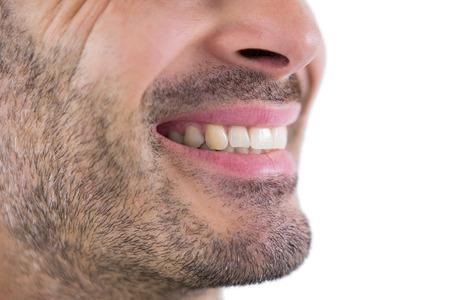 dientes sucios: Primer plano del hombre que muestra sus dientes Foto de archivo