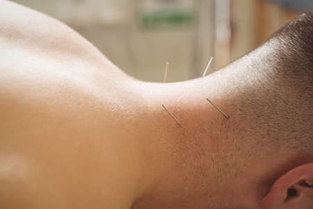 Close-up of a patient getting dry needling on neck