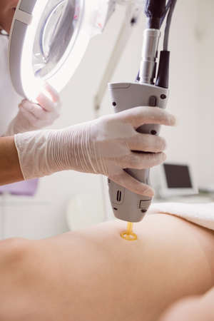 underarms: Close up of doctor performing laser hair removal on female patient skin in clinic LANG_EVOIMAGES