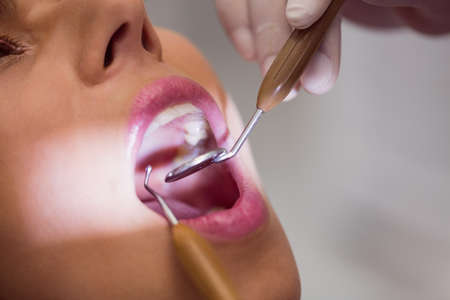 comunicacion oral: Close up of dentist examining female patient teeth LANG_EVOIMAGES